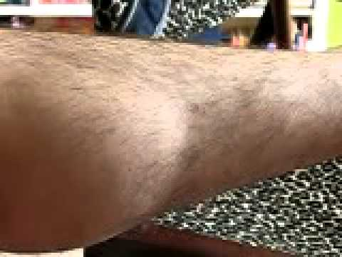 Leg Fasciculations - How To Stop Twitching Limbs.