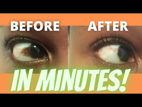 How to get rid of a brown spot / discolouration on the whites of the eye / sclera