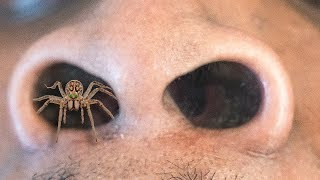 GIANT Spider in NOSE!