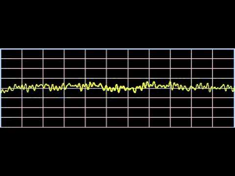 Torticollis - Rife Frequencies