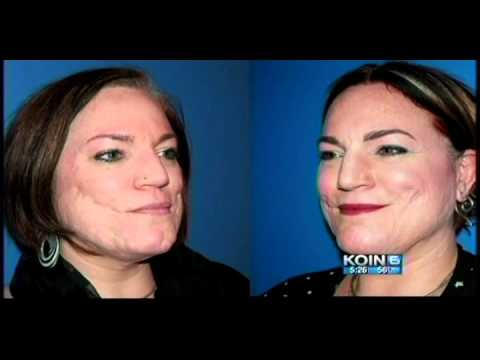Skin by Lovely™ in the News | KOIN in Portland, OR News