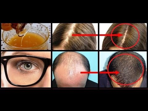 YOUR HAIR WILL GROW LIKE CRAZY AND YOU'LL HAVE EAGLE EYESIGHT EAT 3 TABLESPOONS A DAY