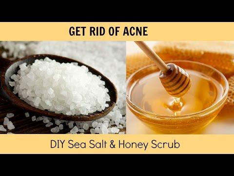 HOW TO: GET RID OF ACNE! | DIY Sea Salt & Honey Scrub