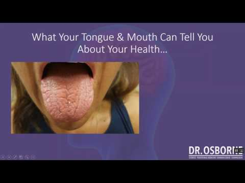 What the tongue can tell you about vitamins, minerals, and your health