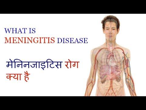 WHAT IS MENINGITIS DISEASE || क्या है मेनिनजाइटिस रोग Video #8 by Ayurveda & Health