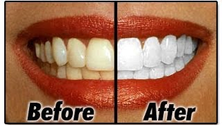 How To : Natural White Teeth AT HOME