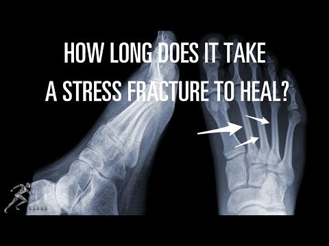 How long does it take a stress fracture to heal?