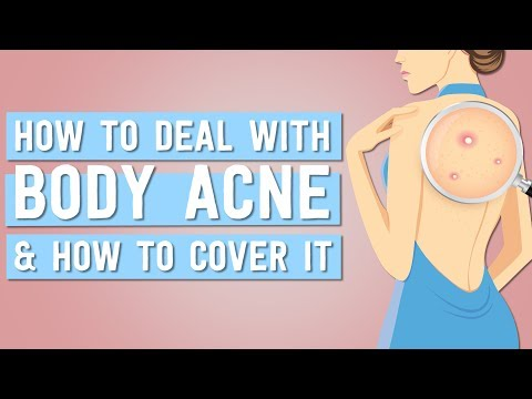 How To Deal With Body Acne And How To Cover It