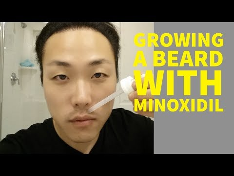 Can Asians Grow Beards With Minoxidil?