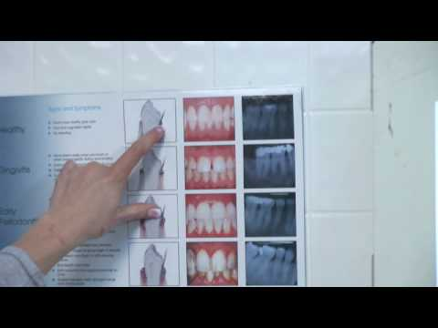 Teeth Whitening : Dental Health: Gums