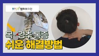 대전도수치료- 목,경추 통증 완전 쉬운 해결방법(feat.대전엠허브의원.라파본 TV)