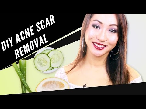 How to Remove Acne Scars Naturally Overnight at Home Remedies - Remove Acne Scars naturally at home