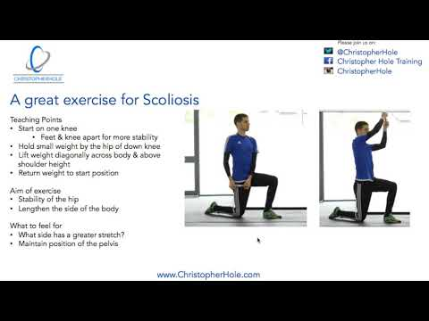 Scoliosis Exercise: A great exercise