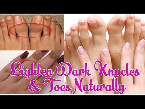 How To Lighten Dark Knuckles And Toes Naturally | Beauty Tips