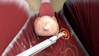 What you need to know prior to prostate surgery