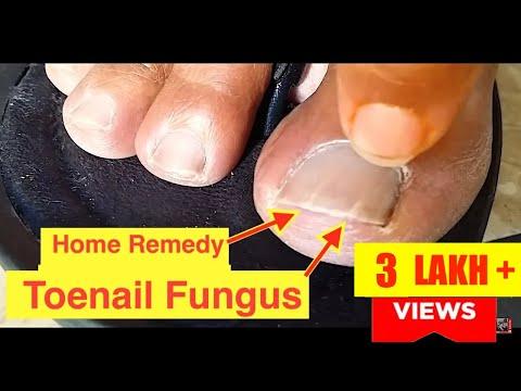 Home Remedy Cure for Toenail Fungus | Cure Nail Fungus with Vicks VaporRub