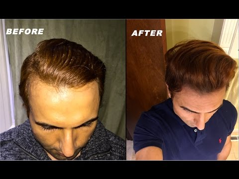 Various Tips & Tricks Models & Actors use for Receding Hairline!