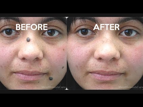 2 Easy Ways To Remove Moles From Your Face | How To Get Rid Of Moles