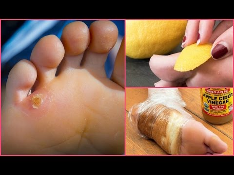 Remove the foot thick calluses and corns!