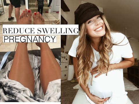 How to reduce pregnancy swelling.