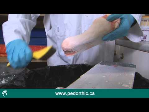 Behind The Scenes of Orthotics