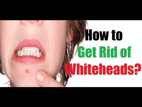 How to Get Rid of Whiteheads on Nose Overnight?