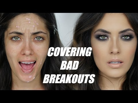 How to Cover Textured Breakouts | Melissa Alatorre