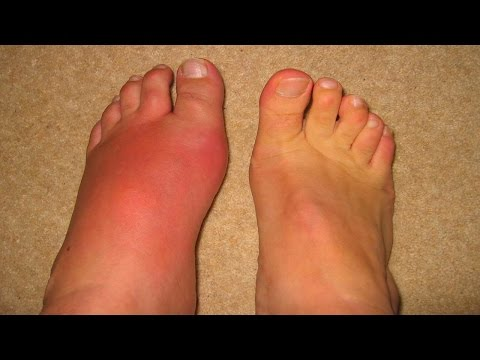 Gout | Gout causes | How to treat gout | Home Remedies for Gout