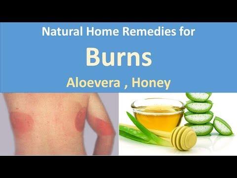 Natural Home Remedies for Burns|Natural Aloevera, Honey
