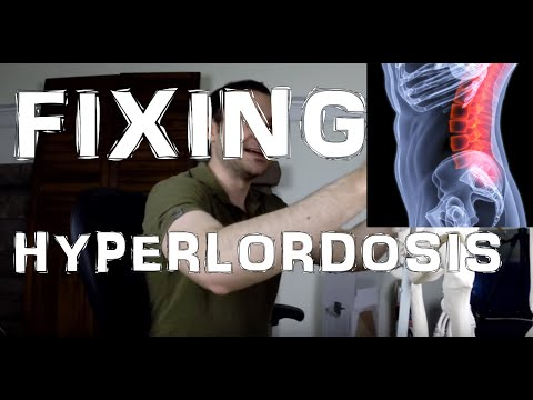 Hyperlordosis (Excessive Lumbar Lordosis): Escape It By Doing This