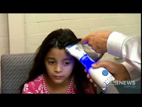 Channel 9 - News Licetec V Comb (Head Lice Removal)