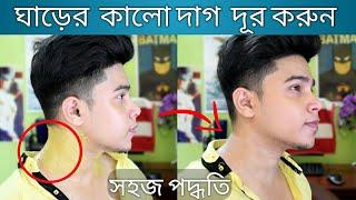 ঘাড়ের কালো দাগ দূর করার সহজ উপায় | 100 % কার্যকরী | Remove Darkness From Neck