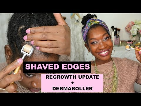 Shaved Off Edges To Grow Them Back Thicker + Dermaroller: 3.5 Month Update | Traction Alopecia | #9