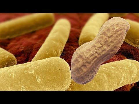 Do Antibiotics Cause Food Allergies + Bacteria Cure Them?