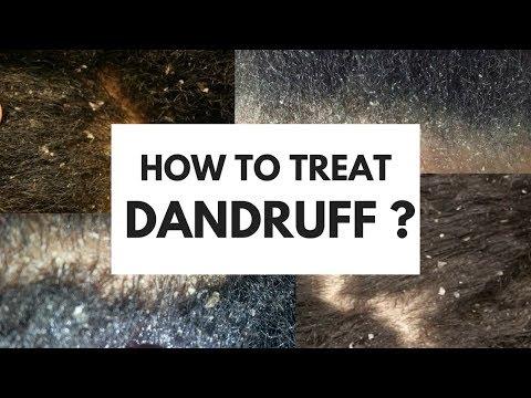 HOW TO TREAT DANDRUFF
