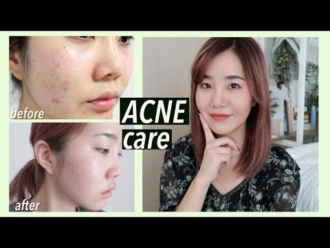 How I Got Rid of Acne Scars & Hyperpigmentation with Korean Skincare