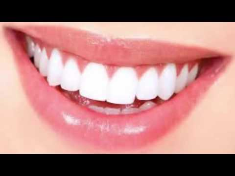 How To Remove Dental Plaque In 5 Minutes Naturally Without Going To The Dentist