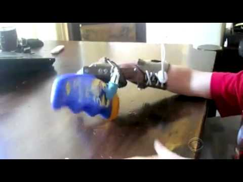 [RAW]Father builds prosthetic hand for son with 3 D printer
