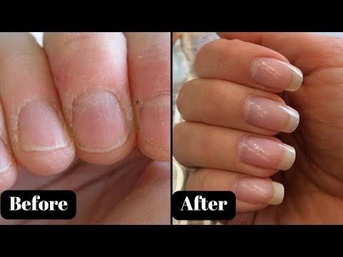 Nail growth serum in Hindi | Grow nails strong & long | Grow nails faster | AVNI
