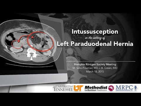 Case Report: Intussusception in the setting of Left Paraduodenal Hernia