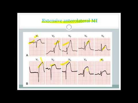 ECG changes in MI made easy