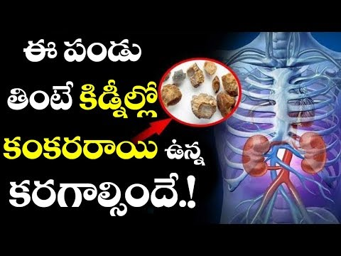 Wow! This Amazing Fruit Can get Rid Of KIDNEY STONES | Remedies for KIDNEY STONES | VTube Telugu
