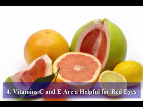 How to Get Rid From Yellow Eyes With Naturally Foods And Get White Eyes
