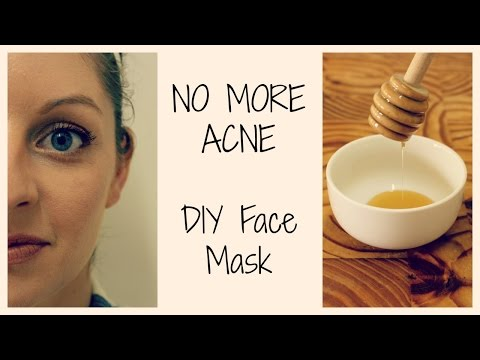 HOW TO GET CLEAR, ACNE FREE SKIN | DIY Face Mask