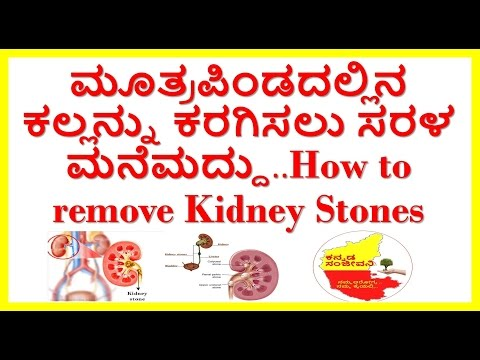 how to remove kidney stones naturally..home remedies to dissolve kidney stones.