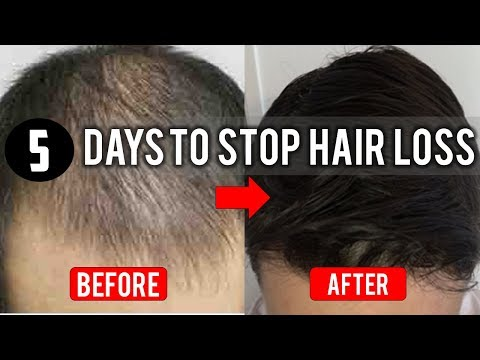 How To Stop Hair Loss and Things To Avoid If You're Experiencing Hair Loss