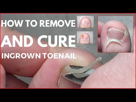 How to remove and cure ingrown toenail.