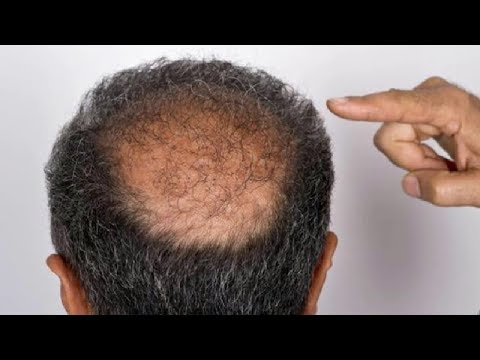 CURE BALDNESS And HOW TO REGROW HAIR NATURALLY without Transplant Surgery