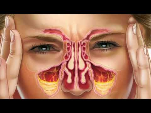 What Is Post Nasal Drip