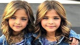 5 MOST UNUSUAL AND BEAUTIFUL KIDS IN THE WORLD